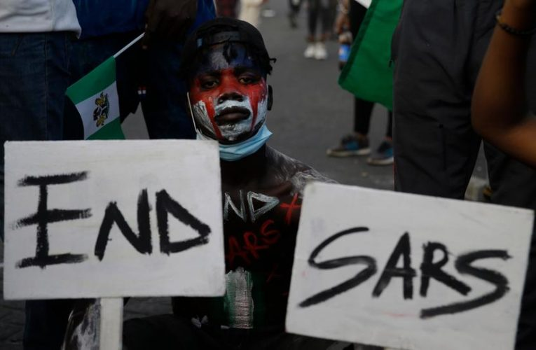 How SARS collected the money needed to treat my Mother in Hospital which led to her Death – Angry young man shares